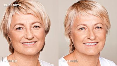 Faltenbehandlung mit Hyaluronsäure-Filler im Gesicht