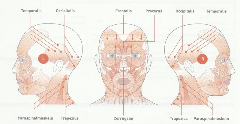 Therapie bei chronischer Migräne mit Botulinum Botox