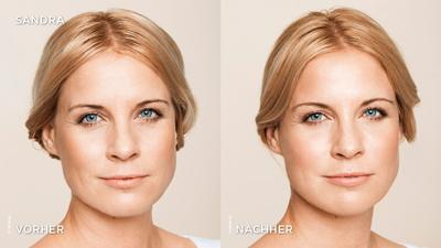 Behandlung von Gesichtsfalten mit Hyaluronsäure-Filler